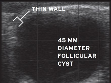 Evaluation of ovarian and uterine structures in cows - Follicular cyst (thumbnail)