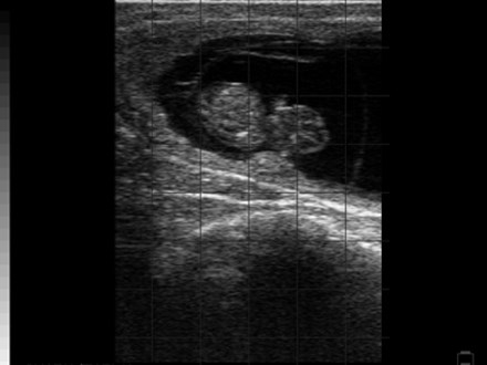 Fetus normal 45 Day Pregnancy BCF Easi-Scan