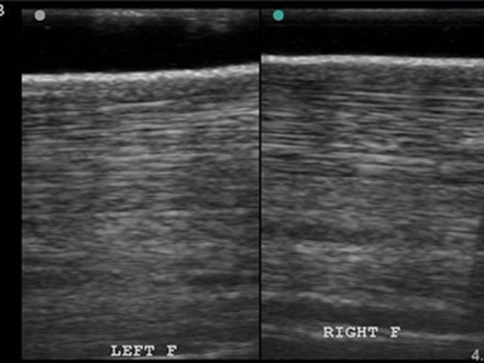 Distal limb normal equine bilateral longitudinal Sonosite Micromaxx HFL38
