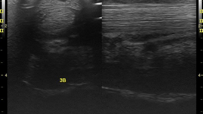 Distal limb core lesion equine comparison SDFT GE LOGIQ e 12L